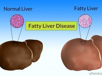 כבד שומני (FL - Fatty Liver) היא מחלה הנגרמת עקב הצטברות של שומן בתאי הכבד מעל הרמה המומלצת