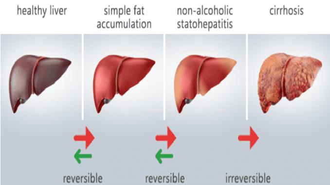 מחקרים מראים כי כבד שומני קיים אצל כ- 40-80% מהאנשים החולים בסוכרת סוג 2, וכן ב- 30-90% מהאנשים הסובלים מהשמנה