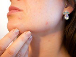 הסיבות העיקריות לפצעונים הן בעיקר הורמונליות ולא קשורות למחסור בוויטמינים או במינרלים